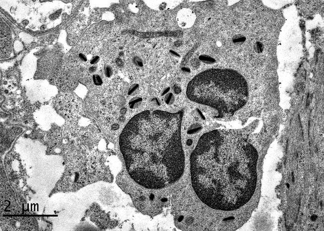 Granulocyte éosinophile