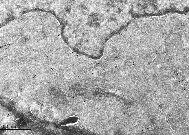 """Immunomarquage d'une protéine ribosomique sur levures cryofixées par haute pression et cryosubstituées MET, observation à 80KV - Vanessa Soldan, équipe P.-E. Gleizes, METI LBME"""""""