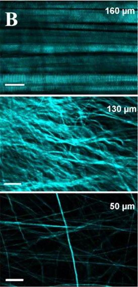 Différentes couches de l'épiderme au microscope confocal multi-photon.