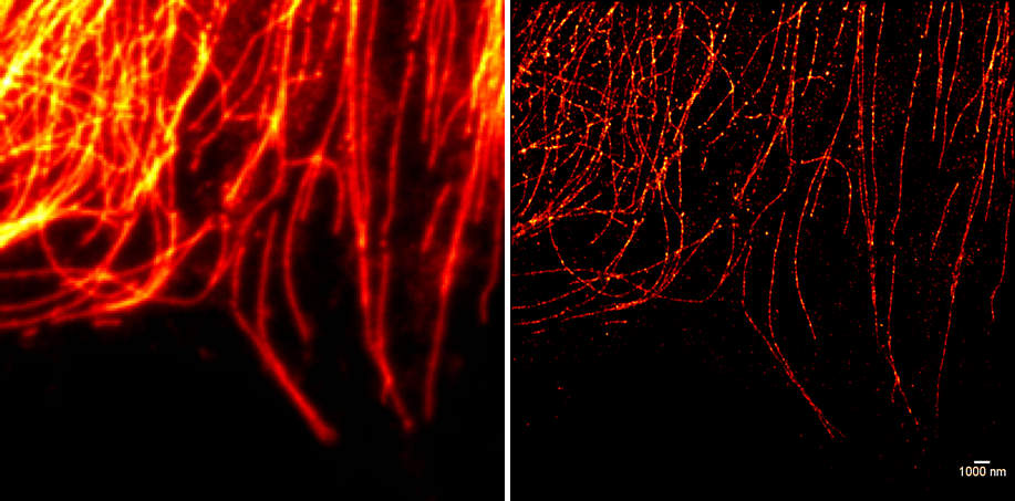 Filaments d'actine : à gauche avec un microscope confocal classique et à droite, grâce à la techniquevec la technique de reconstruction dSTORM. Source : R. Houmadi (plateau imagerie CPTP)